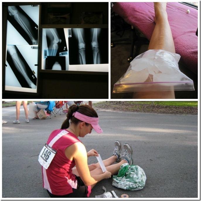 knee-pain-post_thumb